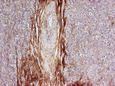 Immunohistochemistry (Formalin/PFA-fixed paraffin-embedded sections) - Anti-Osteopontin antibody (ab8448)