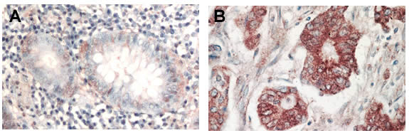 Immunohistochemistry (Formalin/PFA-fixed paraffin-embedded sections) - Anti-pan-AKT antibody (ab8805)