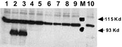Western blot - Anti-activated Notch1 antibody (ab8925)
