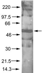 Western blot - Anti-AKT1 (phospho S473) antibody (ab8932)