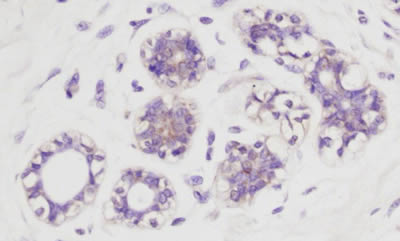 Immunohistochemistry (Formalin/PFA-fixed paraffin-embedded sections) - Anti-AKT1 (phospho S473) antibody (ab8932)