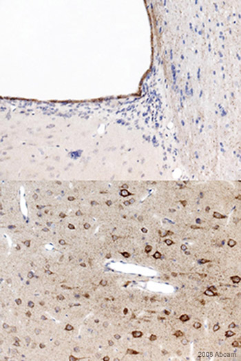 Immunohistochemistry (Formalin/PFA-fixed paraffin-embedded sections) - Anti-PPAR alpha antibody (ab8934)