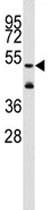 Western blot - Anti-ALDH1A3 antibody - N-terminal (ab80176)