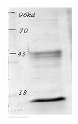 Western blot - Anti-acetyl Lysine antibody (ab80178)