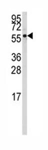 Western blot - Anti-CYP4Z1 antibody - N-terminal (ab80220)