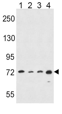 Western blot - Anti-15 Lipoxygenase 1 antibody (ab80221)