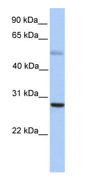 Western blot - Anti-Mad antibody (ab80259)