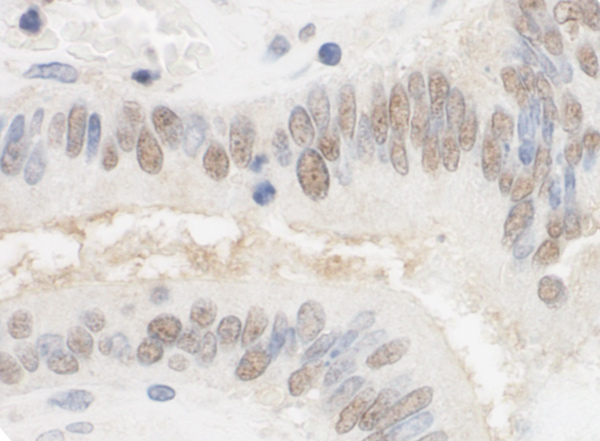 Immunohistochemistry (Formalin/PFA-fixed paraffin-embedded sections) - Anti-CSTF2T antibody (ab80275)