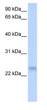 Western blot - Anti-SFRS3 antibody (ab80291)