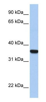 Western blot - Anti-HOXD1 antibody (ab80305)