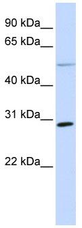 Western blot - Anti-MFAP4 antibody (ab80319)