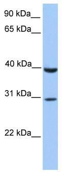 Western blot - Anti-JAZF1 antibody (ab80329)