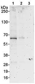 Western blot - Anti-MARVELD2 antibody (ab80421)