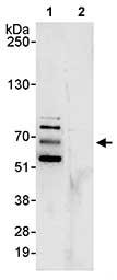 Immunoprecipitation - Anti-MARVELD2 antibody (ab80421)