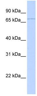 Western blot - Anti-RNF6 antibody (ab80427)