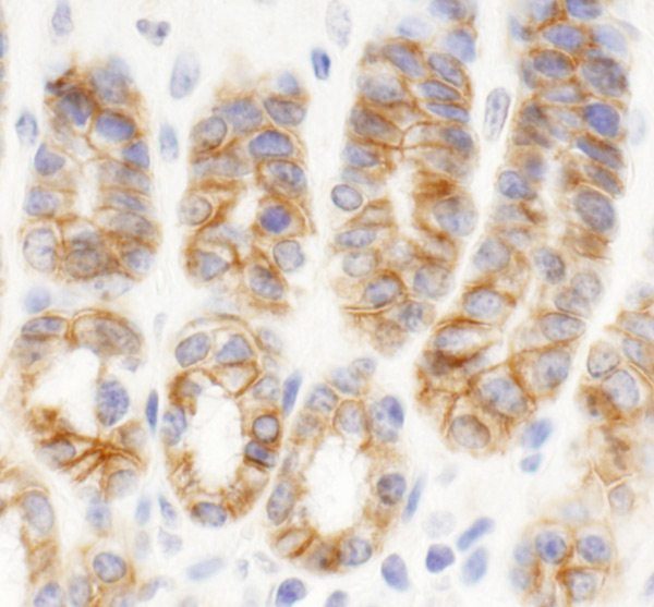 Immunohistochemistry (Formalin/PFA-fixed paraffin-embedded sections) - Anti-KIAA0528 antibody (ab80470)