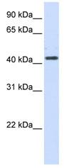 Western blot - Anti-HSD3B2 antibody (ab80500)