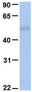 Western blot - Anti-RIOK3 antibody (ab80534)