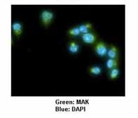 Immunocytochemistry/ Immunofluorescence - Anti-MAK antibody (ab80536)
