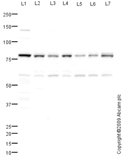 Western blot - Anti-AARE antibody (ab80538)