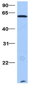 Western blot - Anti-AF9 antibody (ab80558)