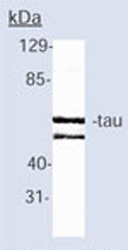 Immunoprecipitation - Anti-Tau antibody [TAU-5] (ab80579)