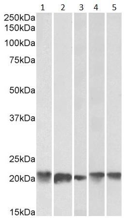 Western blot - Anti-Ferritin Light Chain antibody (ab80585)