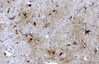 Immunohistochemistry (Formalin/PFA-fixed paraffin-embedded sections) - Anti-Ferritin Light Chain antibody (ab80585)