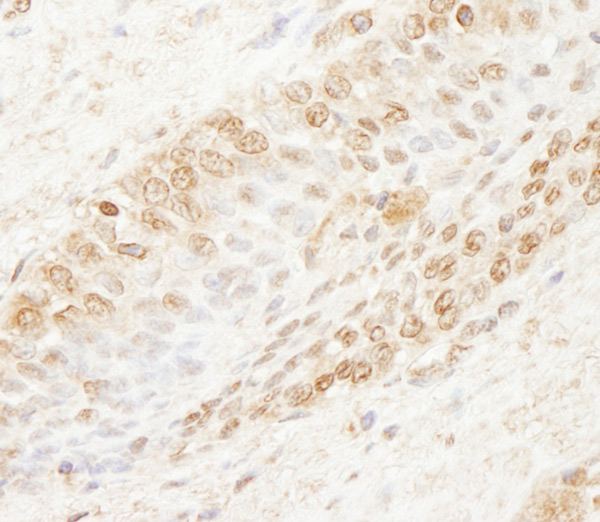 Immunohistochemistry (Formalin/PFA-fixed paraffin-embedded sections) - Anti-WDR91 antibody (ab80614)
