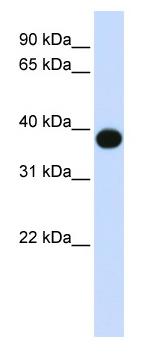 Western blot - Anti-DEGS1 antibody (ab80654)