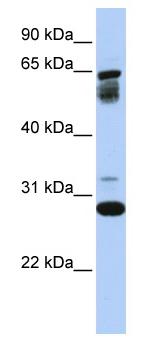 Western blot - Anti-TMEM187 antibody (ab80669)