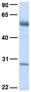 Western blot - Anti-TSPAN6 antibody (ab80670)