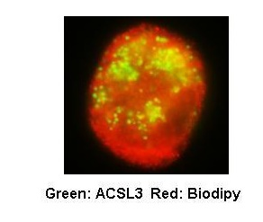 Immunocytochemistry/ Immunofluorescence - Anti-ACSL3 antibody (ab80675)