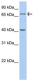 Western blot - Anti-GALNT4 antibody (ab80676)