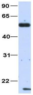 Western blot - Anti-COUP TF1 antibody (ab80698)