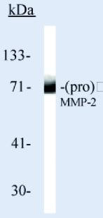 Western blot - Anti-MMP2 antibody [CA-4001] (ab80737)
