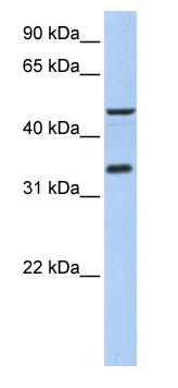 Western blot - Anti-PIP3E antibody (ab80817)