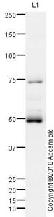 Western blot - Anti-NFIB / NF1B2 antibody (ab80835)