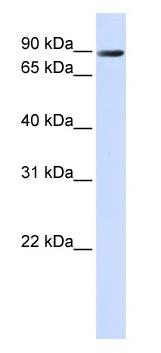 Western blot - Anti-TMEM16K antibody (ab80845)