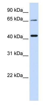 Western blot - Anti-QPCTL antibody (ab80847)