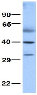 Western blot - Anti-NR0B1 / Dax1 antibody (ab80856)