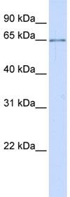 Western blot - Anti-ALG6 antibody (ab80873)