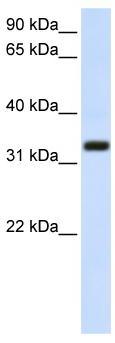 Western blot - Anti-TMEM66 antibody (ab80890)