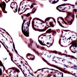 Immunohistochemistry (Formalin/PFA-fixed paraffin-embedded sections) - Anti-RRM1 antibody, prediluted (ab80924)
