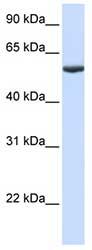 Western blot - Anti-PHF10 antibody (ab80939)
