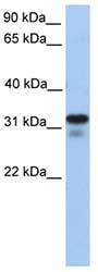 Western blot - Anti-HS3ST6 antibody (ab81036)