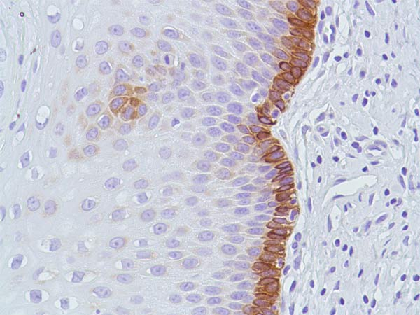 Immunohistochemistry (Formalin/PFA-fixed paraffin-embedded sections) - Anti-Bax [SP47] antibody, prediluted (ab81084)