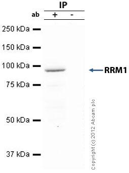 Immunoprecipitation - Anti-RRM1 antibody (ab81085)