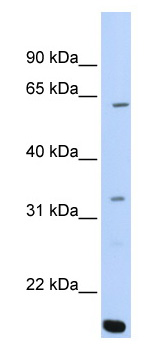 Western blot - Anti-ARID5A antibody (ab81149)