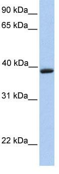 Western blot - Anti-Aquaporin 10 antibody (ab81179)